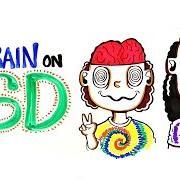 Acid Brains